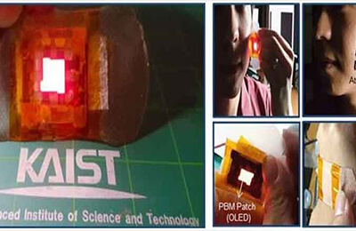 OLED band-aids, the patch cure wounds with light